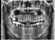 24세 여자환자 / 우측상악 구치부 발치 후 뼈이식 및 임플란트식립