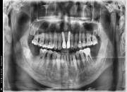 51세 남자환자 / 하악 좌측,우측 구치부 발치후 뼈이식및 임플란트식립