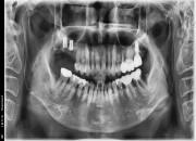 61세 여자환자 / 하악양쪽구치부 발치및임플란트식립, 상악우측임플란트식립 (완성)