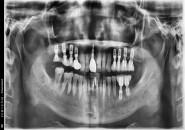 63세 남자환자 / 상악양쪽구치부&전치, 하악좌측구치부 뼈이식및임플란트식립