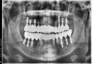 45세남자 상`하악 구치부(상악동) 뼈이식및 임플란트식립