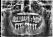 50세여자 하악좌우  구치부  뼈이식및임플란트식립